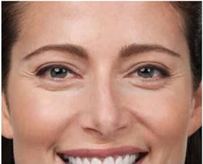 Botox Cosmetic for Wrinkle Treatment