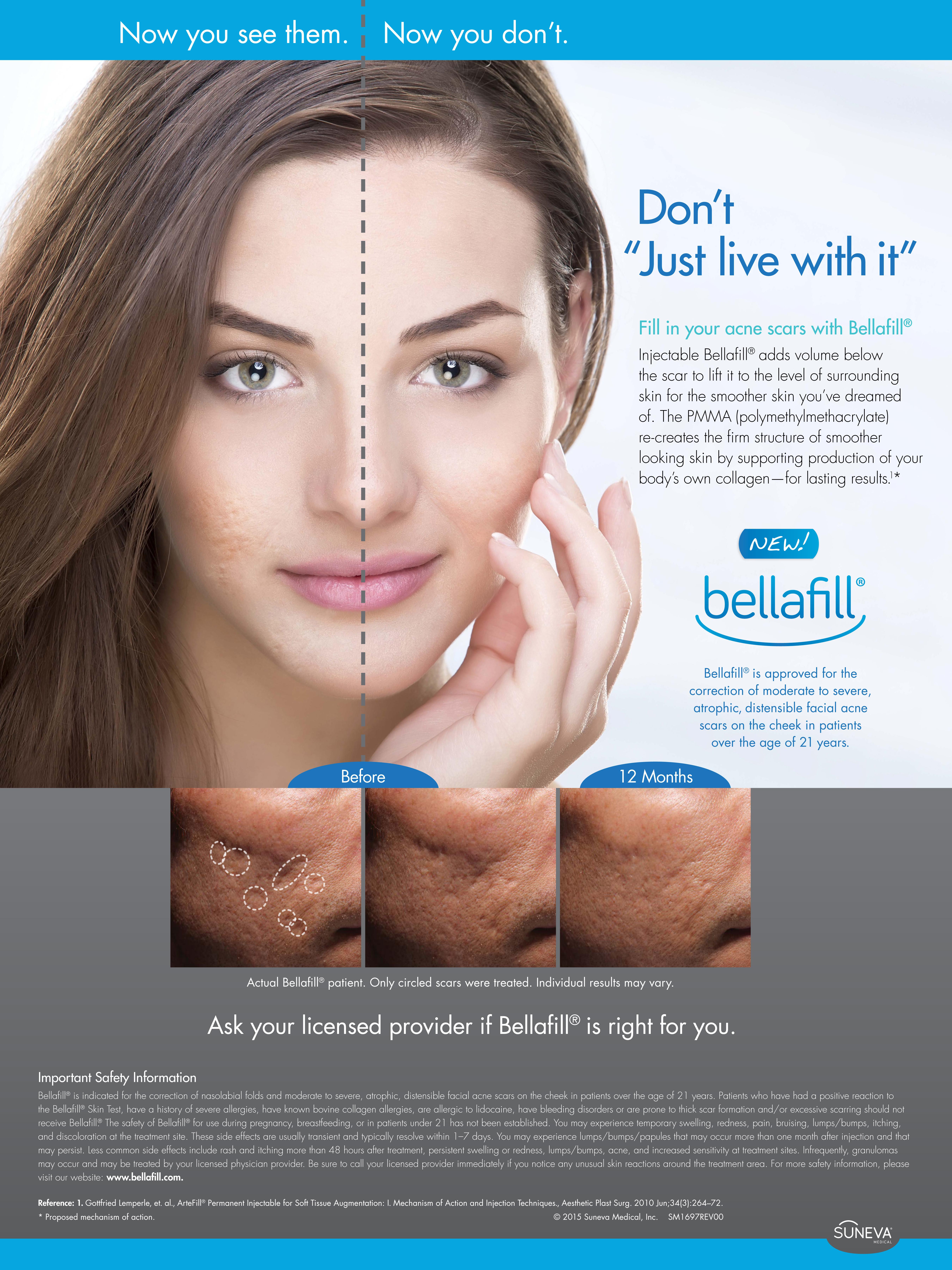 comment vaincre l acné grossesse