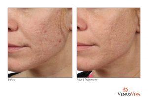 Venus Viva treatment in San Diego - Beatitude Aesthetic Medicine (619) 280-1609