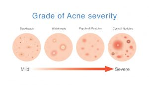 Is Laser Treatment Worth it for Acne and Scars? Beatitude Aesthetic Medicine, San Diego.