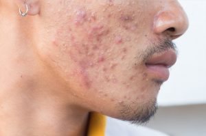 Can lasers treat acne and scars? Acne treatment in San diego - Dr. Aeria Chang, MD.
