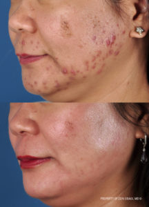 Acne skin care from ZO Skin Health - Purchase from Aeria Chang, MD in San Diego.