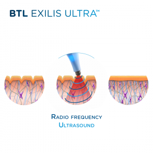 Cosmetic Treatments Spotlight: Exilis Ultra and Lutronic Genius