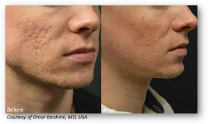 Lutronic Genius treatments can help acne skin look smoother. Aeria Chang, MD - San Diego