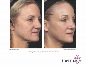 Thermage for skin tigthening in San Diego - Dr. Aeria Chang (619) 280-1609