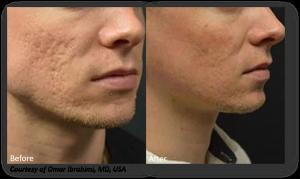 Improve acne scarring with Lutronic Genius - San Diego, CA - Beatitude Aesthetic Medicine (619) 280-1609.