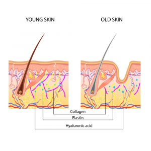 Boost collagen with cosmetic procedures - Dr. Aeria Chang   San Diego (619) 280-1609